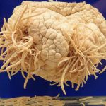 Tokyo's Museum of Parasites Will Make Your Skin Crawl
